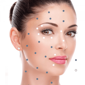 bea Skin clinic - Collagen Injections with Linerase in London, Antwerp, Abuja and Beckenham