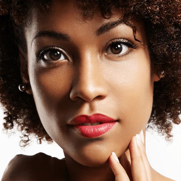 hyperpigmentation on face