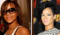 Skin Lightening In London: Lighter Skin Like Beyonce and Rihanna