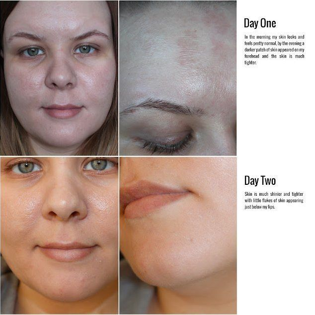 TCA skin peel review