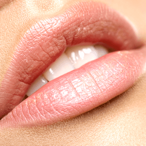 bea Skin Clinic - Lip Augmentation in London, Abuja, Antwerp and Beckenham