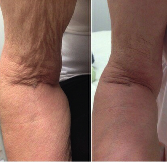 BA Profhilo Arms – bea Skin Clinic