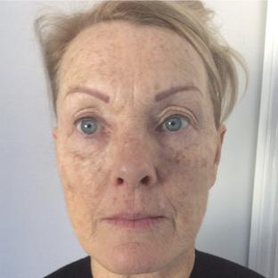 Before Nithya – bea Skin Clinic